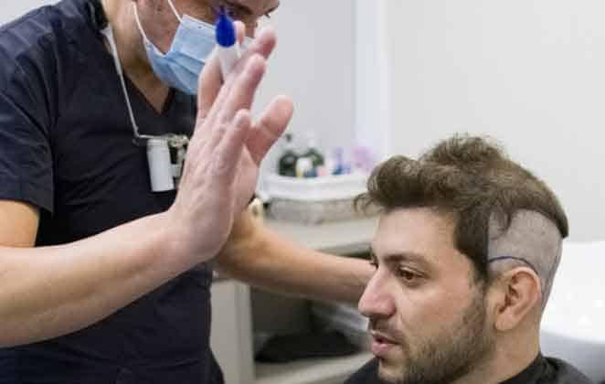 Caio Afiune faz implante capilar (Reprodução/ Instagram)